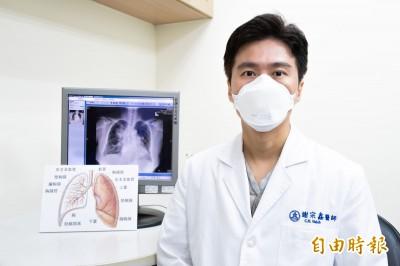 外送員隱憂!長期不戴口罩騎車 咳不停就醫竟發現罹肺癌