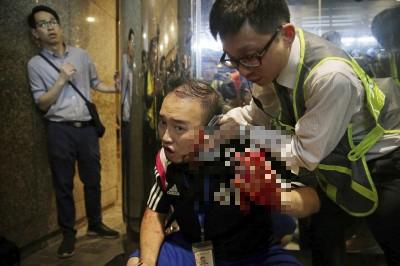香港驚傳歹徒咬落民主派議員左耳 當街持刀傷5人