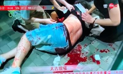 港「七區開花」警捕2記者 兇嫌持刀傷5人議員耳遭咬落
