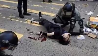 香港人報仇》猛晃昏厥中槍學生 港警:增援人員不知情