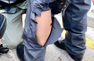 香港人反抗》警中箭 網友拿官話酸「電光火石別無選擇」