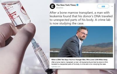 男子接受骨髓移植後 精液出現捐贈者DNA