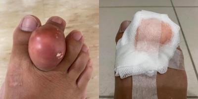 不是寄生蟲!他右腳食指關節痛風 竟腫成1顆雞蛋