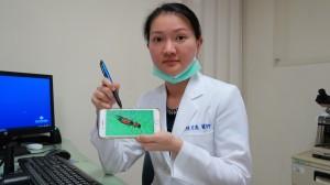 隱翅蟲出沒 皮膚科就診人數激增