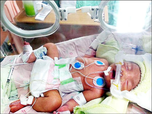 出生僅28天的「莉婕」,因罹患罕見疾病「非典型性溶血尿毒症」病逝,家屬氣憤質疑,去年政府說要將這項罕病列入健保給付,但時至今日仍沒有下文。(家屬提供)