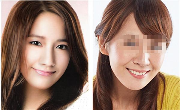 術後(右)與韓星潤娥(左)的下巴較接近。(照片提供/張博全)