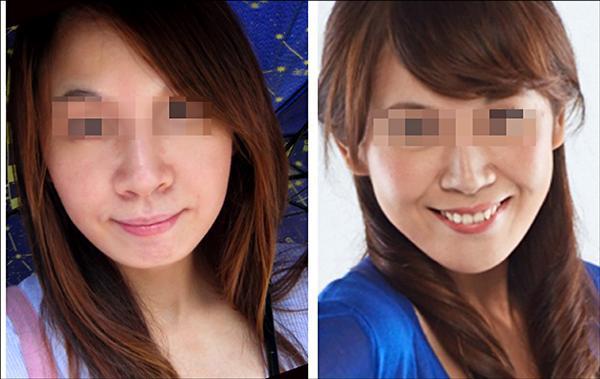 術前(左)、術後(右)。(照片提供/張博全)