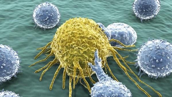 美國最新一份最新的研究顯示,大部分的癌症成因,都和家族遺傳、環境無關,會罹癌只是因為「運氣不好」。(照片擷自澳洲新聞網)