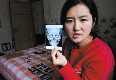 靳魏坤一天內動了12項手術,想不到全部失敗,變得「臉歪嘴斜」,南韓院方不願承認,談判未果。(圖片擷取自《鳳凰網》)