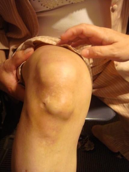 多氯聯苯中毒造成膝關節變形。(記者張軒哲翻攝)