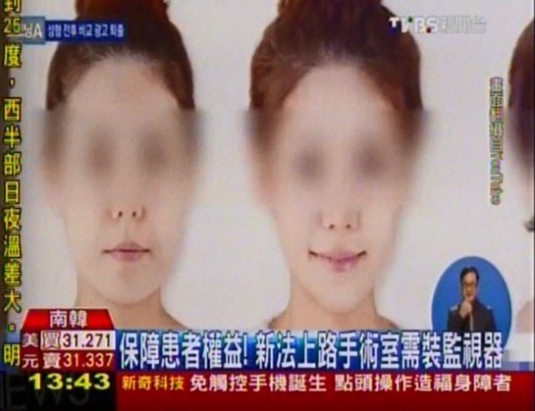 南韓衛生福利部於11日公布新法,規定醫美診所業者禁止刊登患者術前術後比對照,且擁有3名醫師以上診所需於手術室內裝置監視器,避免「代理手術」不肖行為。(圖片擷取自TVBS新聞台)