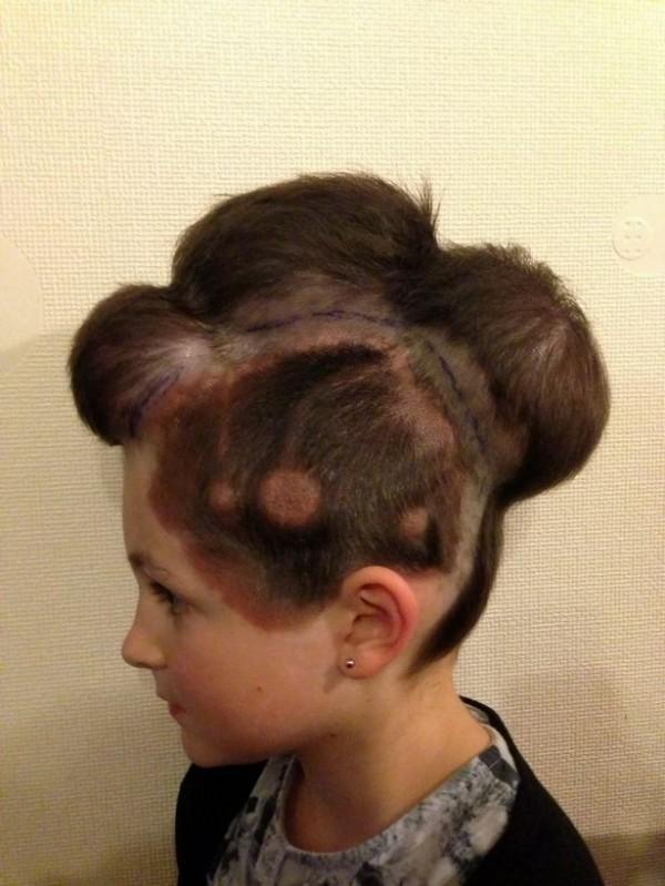 英國女童布蕾特因頭上的胎記過大且有致癌風險,採取在頭皮下植入氣球讓皮膚增生的治療方法。(圖擷取自《鏡報》)