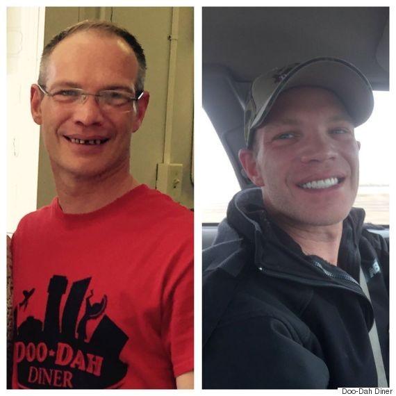 布萊恩示整牙後改變了他的人生,讓他變得更有自信。(圖取自Huffpost)