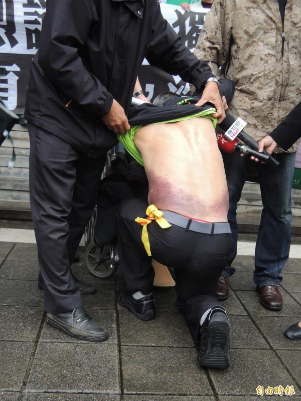 去年周榮宗被警毆打,身上一片瘀青。(資料照,記者張文川攝)