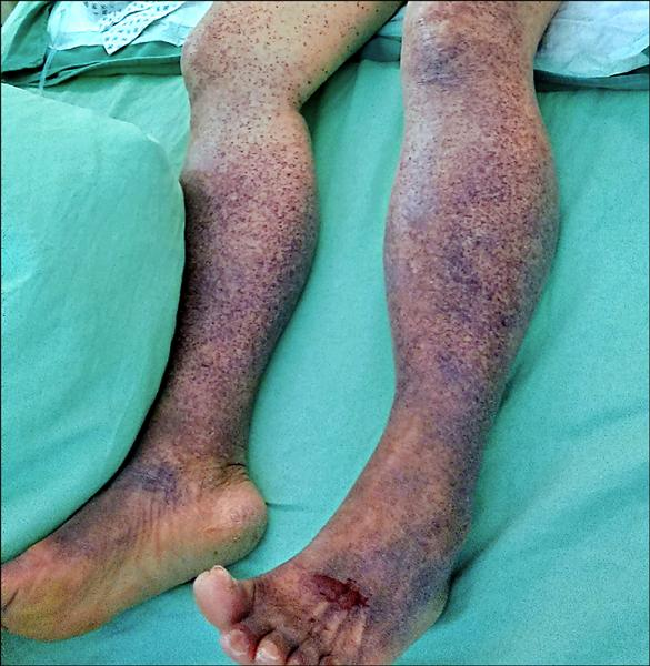 足 大人 紫斑 病
