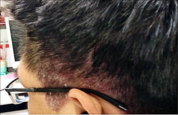 頭皮乾癬是一種慢性發炎疾病,發炎處會有紅斑、脫屑、發癢等症狀。