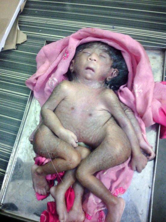 印度出現一名男嬰擁有四隻手四隻腳,被民眾當成印度教中的「象頭神」崇拜。(圖取自鏡報)