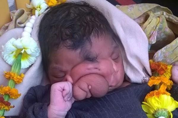 印度教徒崇拜畸形兒早非先例,日前也曾將面部畸形的女童當成象神。(圖取自鏡報)