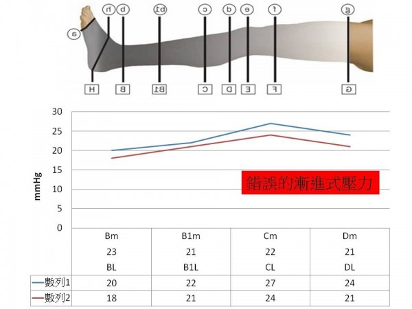市面上不合格壓力襪,壓力不足,且壓力曲線錯誤,沒有漸進式壓力,愈穿愈不舒服,易痠痛、腫脹,還可能造成靜脈曲張和惡化。(記者蔡淑媛翻攝)