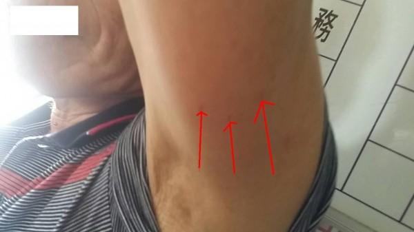 高姓男子露出手臂被蜂螫處,但傷口僅有小紅點,身體沒有不適。(記者王善嬿翻攝)