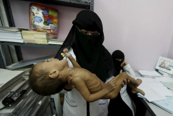 葉門兒童營養不良的狀況非常嚴重,讓聯合國兒童基金會(UNICEF)非常擔憂。(路透社)