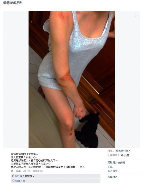 日前台北傳出有女大學生搭到「假Uber」,發覺後嚇得跳車,摔得滿身是傷,引起民眾對於Uber安全問題的討論。(翻攝詹姓女大生臉書)
