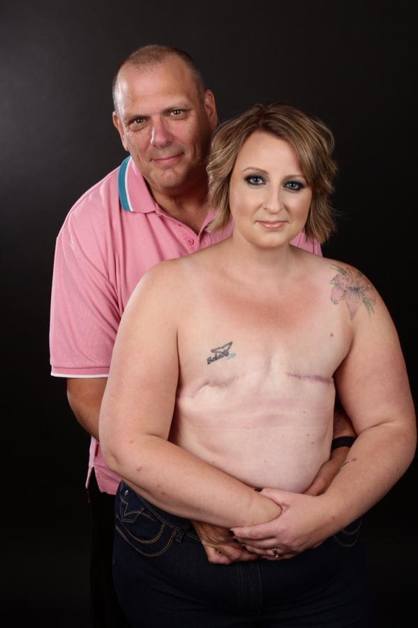 英國女勇敢抗癌,分享照片鼓勵其他乳癌患者。(取自艾莉森的推特)