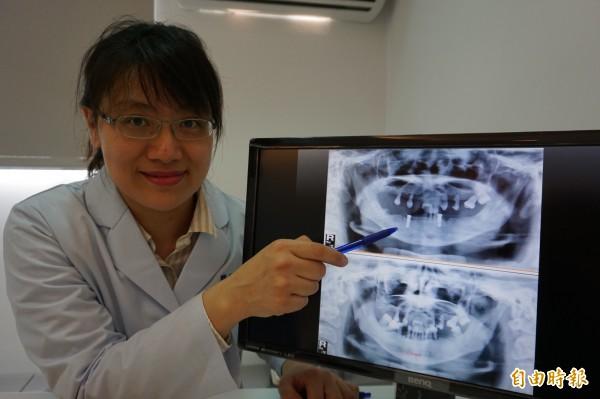 婦人嚴重牙周病,僅剩18顆牙全都搖搖欲墜,牙醫師吳立琳拔除牙齒後,在下顎犬齒處各植入2顆植體,準備搭配活動假牙。(記者蔡淑媛攝)