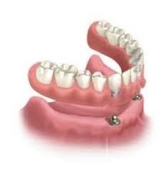結合植牙的活動假牙,下顎前牙處植入植體,扣上活動假牙,讓假牙更穩固、咬合力更好。(記者蔡淑媛翻攝)