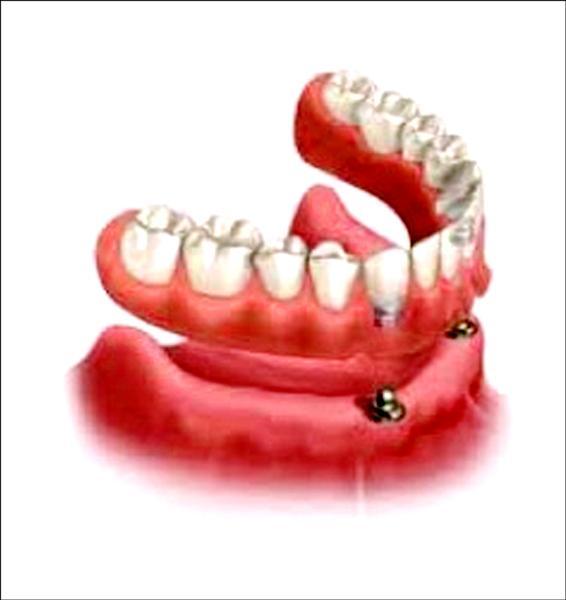 ▲下顎前牙處植入植體,扣上活動假牙,可讓假牙更穩固、咬合力更好。(記者蔡淑媛翻攝)