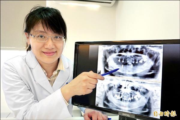 ▲吳立琳醫師替患者拔牙後,在下顎犬齒處各植入2顆植體,以便搭配活動假牙。(記者蔡淑媛攝)