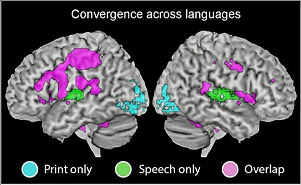 4國共18位研究者發現,人類大腦在進行閱讀、聽讀中,使用頻率較高的皆為左腦,不分語種差異,如圖中,左邊為左腦造影、右邊為右腦,藍色區域是視覺閱讀詞彙時大腦運作區塊,綠色是聽覺辨識字詞區塊,粉紅紫色為兩者重疊區塊,圖中顯示左腦部分運用區塊較大。(台師大提供)