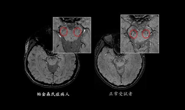 帕金森氏症患者腦部造影結果,可清楚發現「燕子尾巴」不見了。(北醫附醫提供)