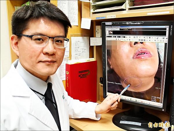 ▲徐偉凱醫師指出,患者的頸部腫起,有喉嚨痛、呼吸不順的情形,就醫才發現是深頸部感染。(記者丁偉杰攝)