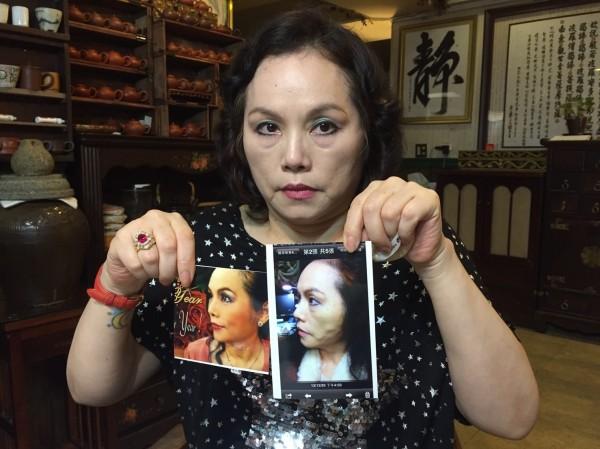 李珮菁拿出照片,表示術後臉彷彿有蚯蚓在爬(李珮菁提供)