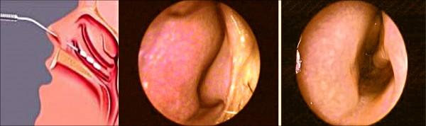 電波微創手術將電針深入鼻腔(左圖),燒灼縮小腫脹的鼻甲(中圖),暢通鼻腔通道(右圖)。(記者蔡淑媛翻攝)