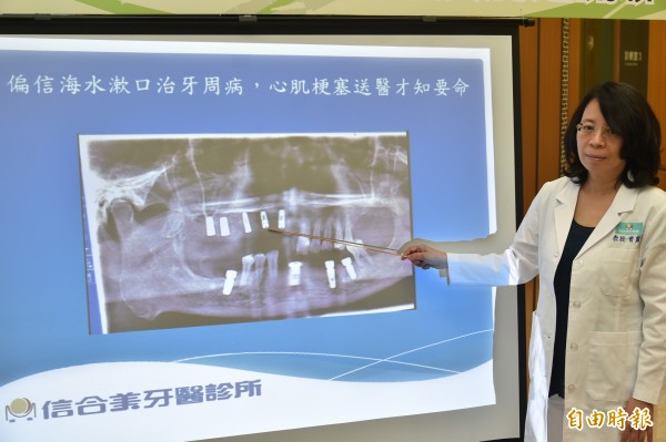 偏信海水漱口治牙周病,險致心肌梗塞送命,原來牙周病也會影響心血管疾病發生的機率。(記者張忠義攝)