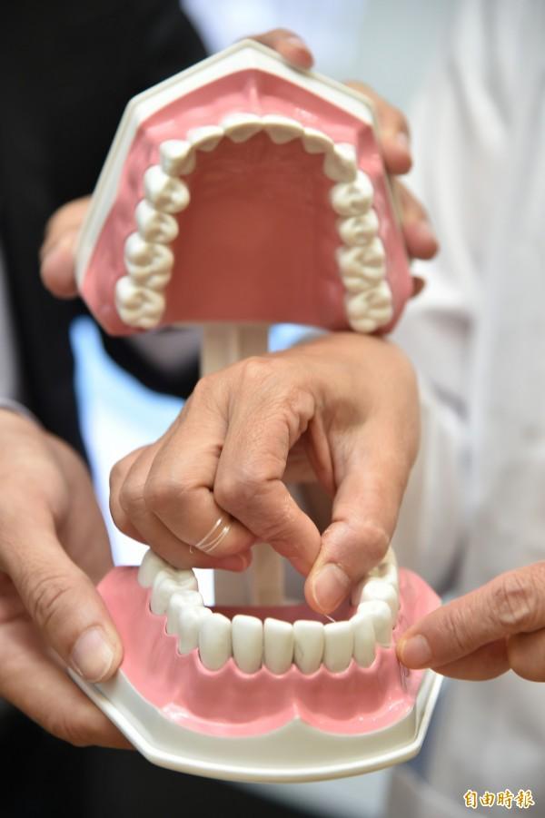 潔牙可預防牙周病,也能延緩牙周病惡化,牙縫還有許多死角會殘留牙菌及異物,仍需配合牙線及齒間刷,才能徹底潔牙。(記者張忠義攝)