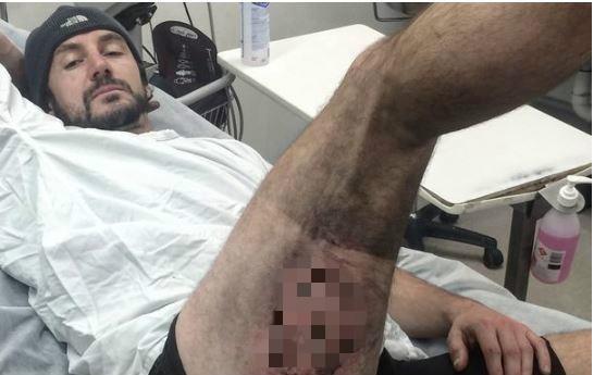 事發時iPhone6手機電池融出黑色岩漿般的滾燙黏稠液體,燙傷了他的大腿。(圖擷自《鏡報》)
