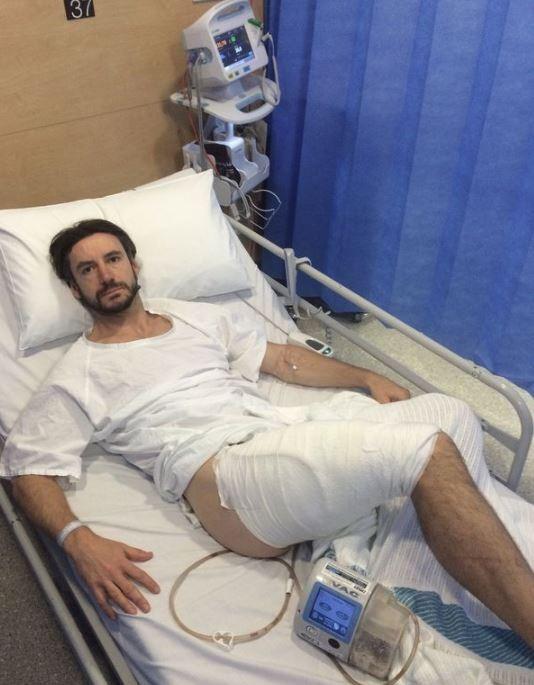 克雷爾騎自行車時意外跌到iPhone6上面,就被燒掉大腿後方兩層皮。(圖擷自《鏡報》)