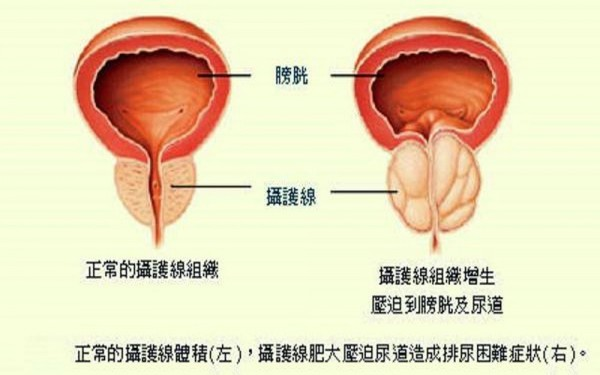 攝護腺肥大(右)會造成排尿困難。(圖:安南醫院提供)