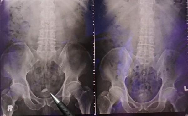 這名68歲阿公4年前膀胱結石(左),上個又發現結石。(記者蔡淑媛翻攝)