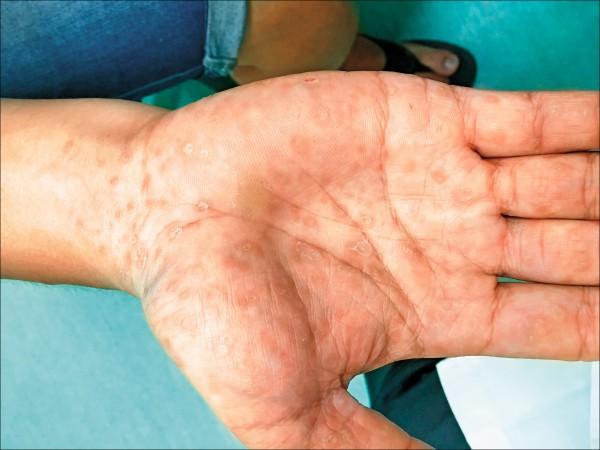 ▲手掌佈滿紅疹,不痛不癢,原來是梅毒。(照片提供/黃星瑋)