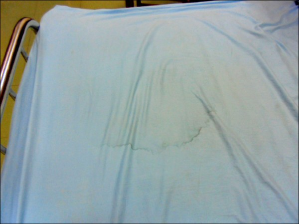 何童遭重摔後躺在床上口吐白沫,事後仍可見污痕。 (記者許展溢翻攝)