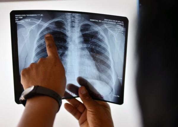 台北市衛生局證實,轄內某高中在今年初才一度傳出肺結核群聚感染,不料7月底又傳出確診個案,之後針對重點對象擴大採檢,結果今天出爐,又發現另有2名「潛伏感染者」。圖為示意圖。(資料照,法新社)