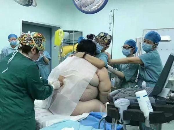 中國有名140公斤的孕婦生產,院方出動了16名醫護人員。(圖擷取自鳳凰網)