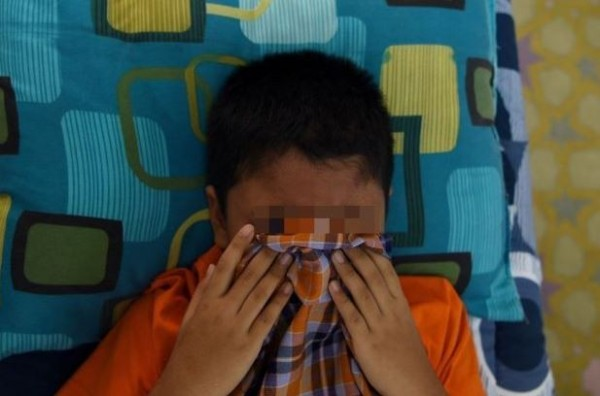 馬國一名男孩在進行割包皮手術時,他的龜頭被醫師連同包皮一起割下。圖為示意圖,非新聞當事人。(法新社)