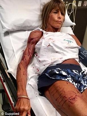 厄瓜特遭2公尺高的袋鼠重襲,送醫縫了35針。(圖擷取自《每日郵報》)