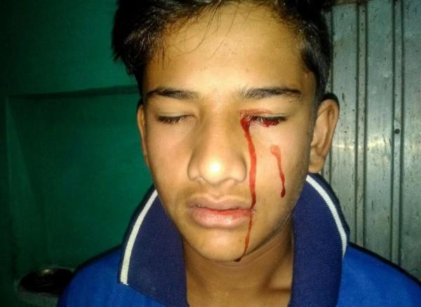 印度13歲男孩拉格文西(Akhilesh Raghuvanshi),在眼睛,耳朵、嘴巴、臉龐、手、腿等處,就算沒有傷口也會流出血液。(圖擷自《太陽報》)