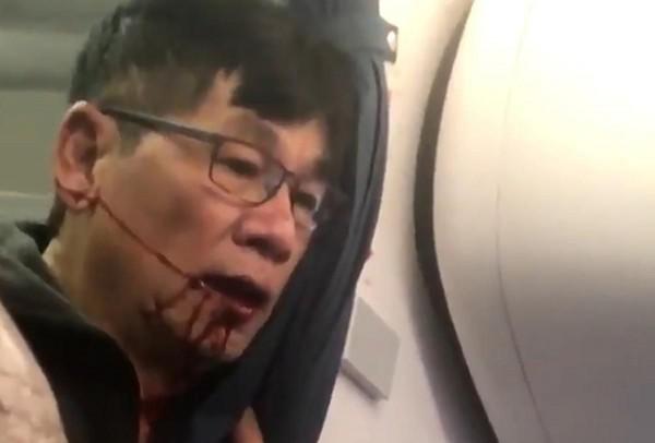 一名聯合航空的空服員指出,其實乘客受傷可以避免。(圖擷取自推特)